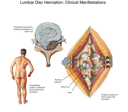 disc herniation, Cephalic Vein